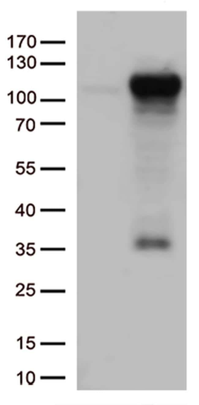 GTF3C4 Antibody in Western Blot (WB)