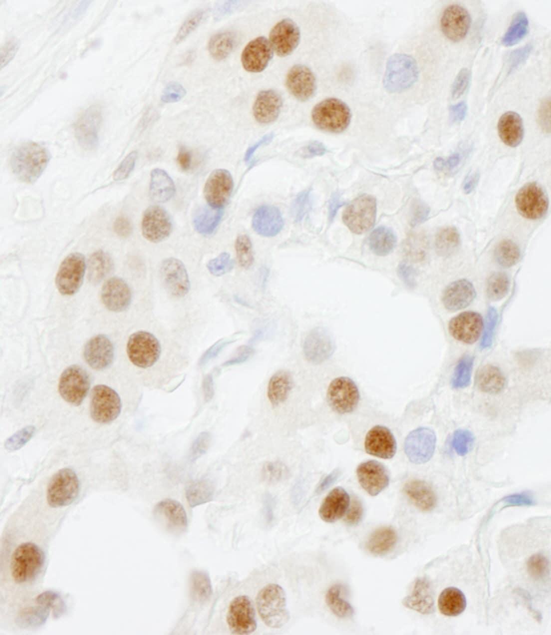 GTF3C5/TFIIIC63 Antibody in Immunohistochemistry (IHC)