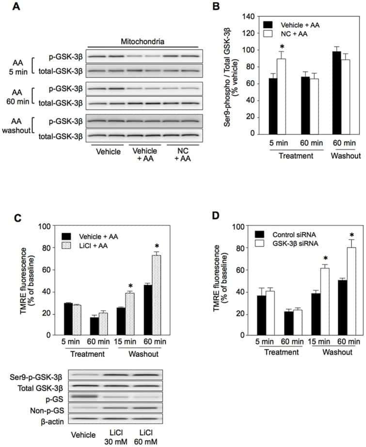 Phospho-GYS1 (Ser641, Ser645) Antibody