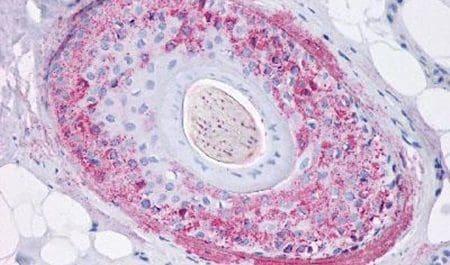 GHSR Antibody in Immunohistochemistry (Paraffin) (IHC (P))