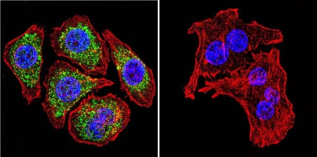 Glucocorticoid Receptor alpha Antibody in Immunofluorescence (IF)