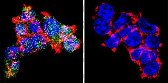 Glucocorticoid Receptor Antibody in Immunofluorescence (IF)