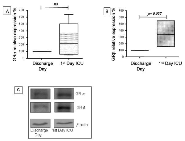 Glucocorticoid Receptor beta Antibody