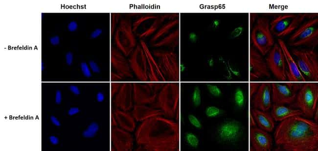 GRASP65 Antibody in Cell Treatment