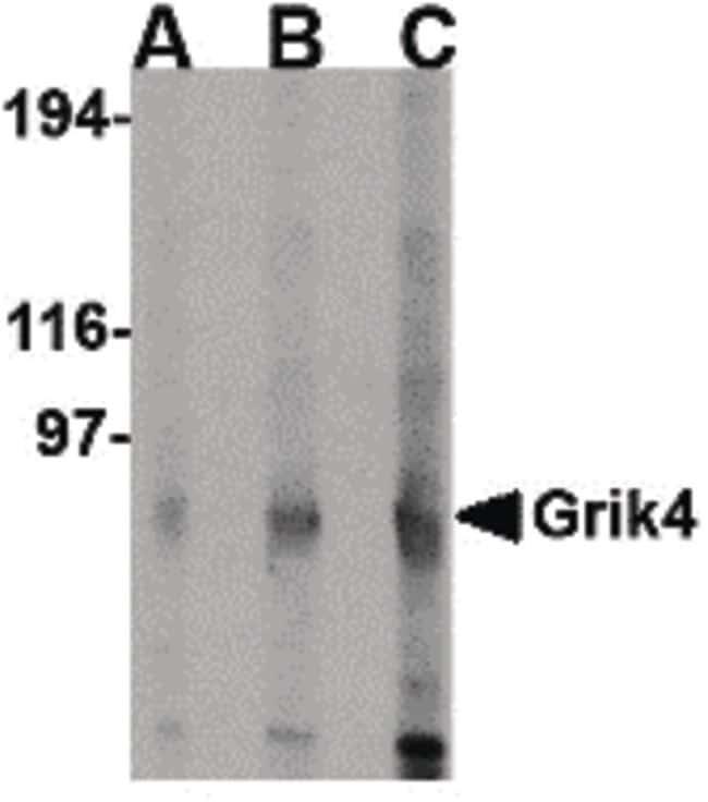 GRIK4 Antibody in Western Blot (WB)