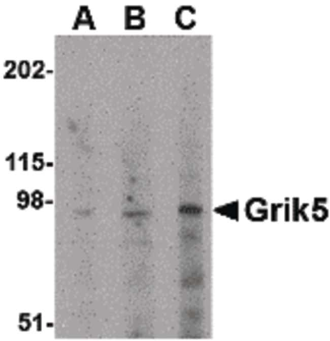 GRIK5 Antibody in Western Blot (WB)