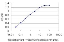CACNB2 Antibody in ELISA (ELISA)
