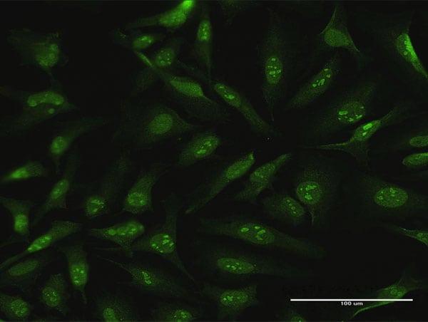 CDC6 Antibody in Immunocytochemistry (ICC)