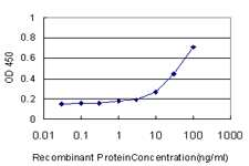 GCLM Antibody in ELISA (ELISA)