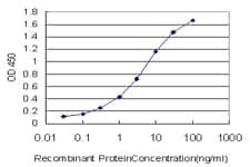 GSN Antibody in ELISA (ELISA)