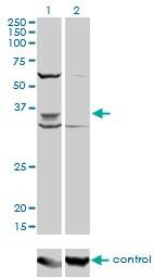 PAX9 Antibody in Western Blot (WB)