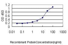 SARS Antibody in ELISA (ELISA)