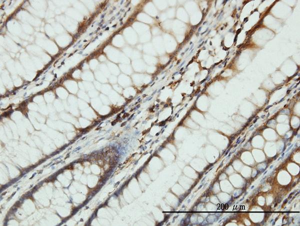 SARS Antibody in Immunohistochemistry (Paraffin) (IHC (P))