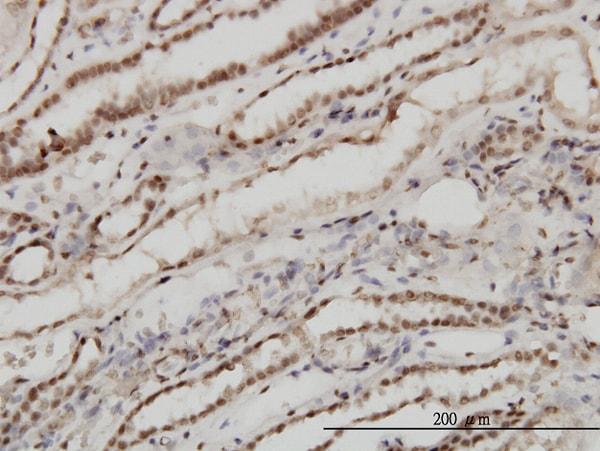 TSG101 Antibody in Immunohistochemistry (Paraffin) (IHC (P))
