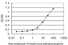 TWIST1 Antibody in ELISA (ELISA)