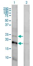 CLDN1 Antibody in Western Blot (WB)