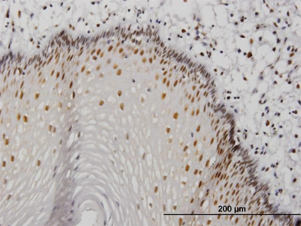 MTA1 Antibody in Immunohistochemistry (Paraffin) (IHC (P))