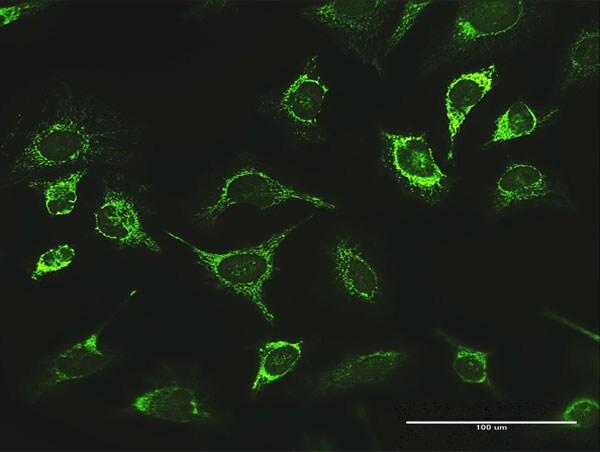 LONP1 Antibody in Immunocytochemistry (ICC)