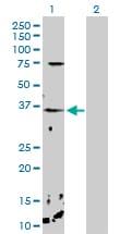 CHP Antibody in Western Blot (WB)