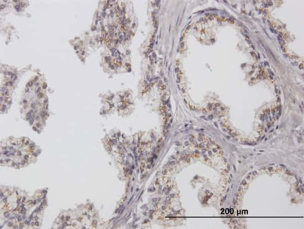 CHGN Antibody in Immunohistochemistry (Paraffin) (IHC (P))
