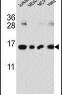 H2AFJ Antibody in Western Blot (WB)
