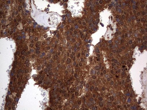 H2AFY2 Antibody in Immunohistochemistry (Paraffin) (IHC (P))