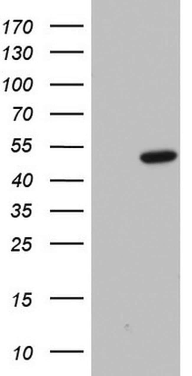 H2AFY2 Antibody in Western Blot (WB)