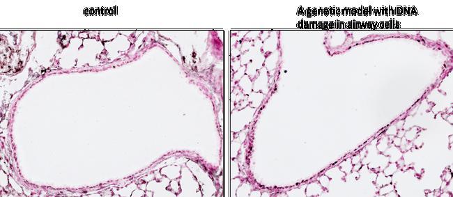 Phospho-Histone H2A.X (Ser139) Antibody in Immunohistochemistry (IHC)