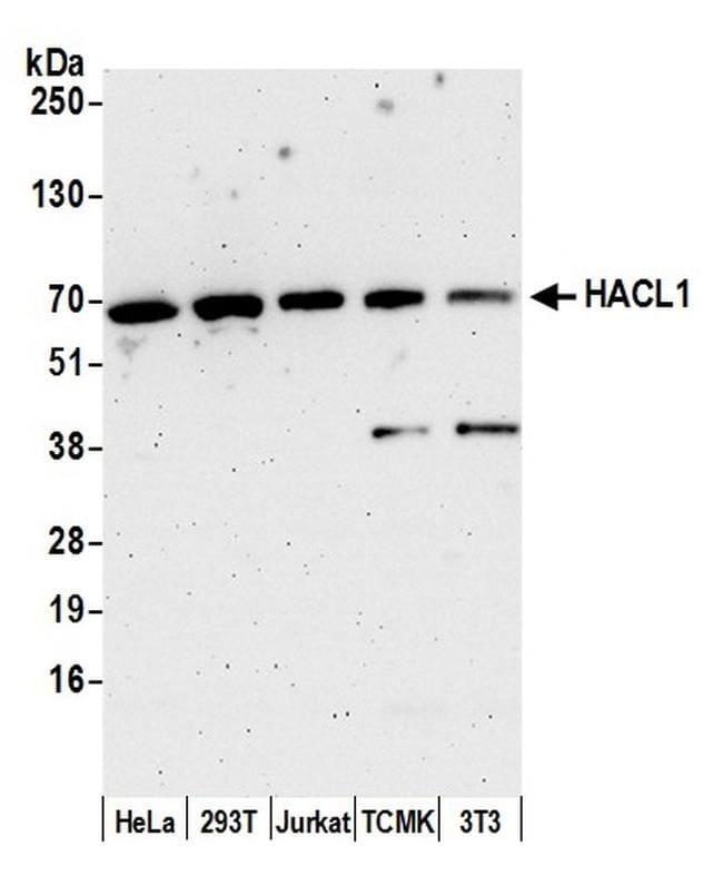 HACL1 Antibody in Western Blot (WB)