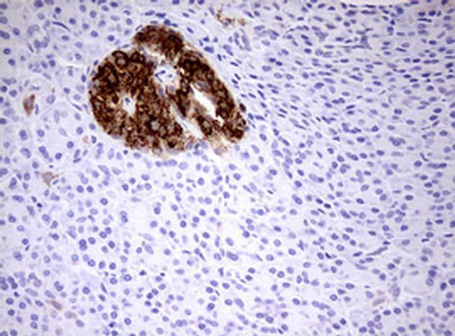 HADH Antibody in Immunohistochemistry (Paraffin) (IHC (P))