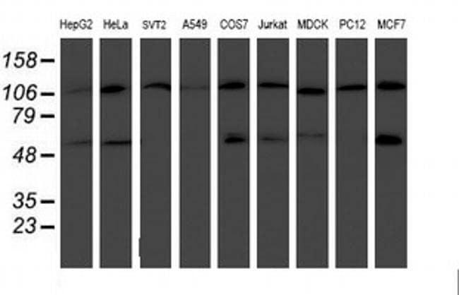 HARS2 Antibody in Western Blot (WB)