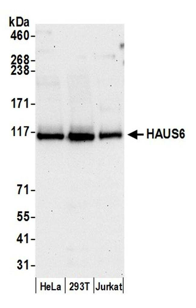 HAUS6 Antibody in Western Blot (WB)