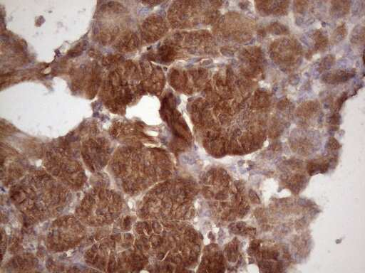 HAVCR2 Antibody in Immunohistochemistry (Paraffin) (IHC (P))