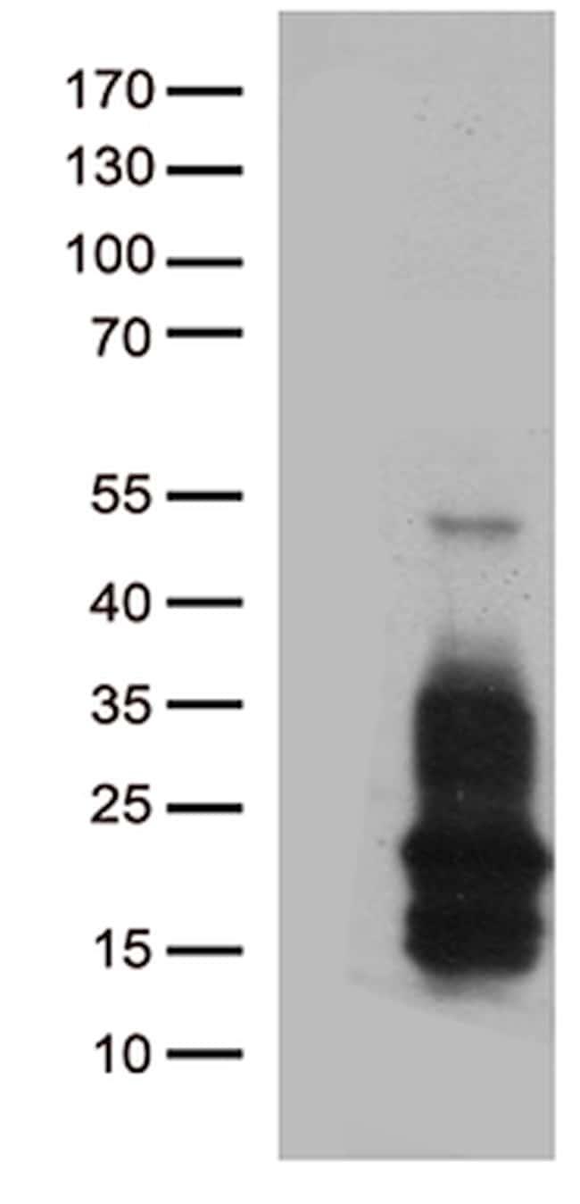 HBEGF Antibody in Western Blot (WB)