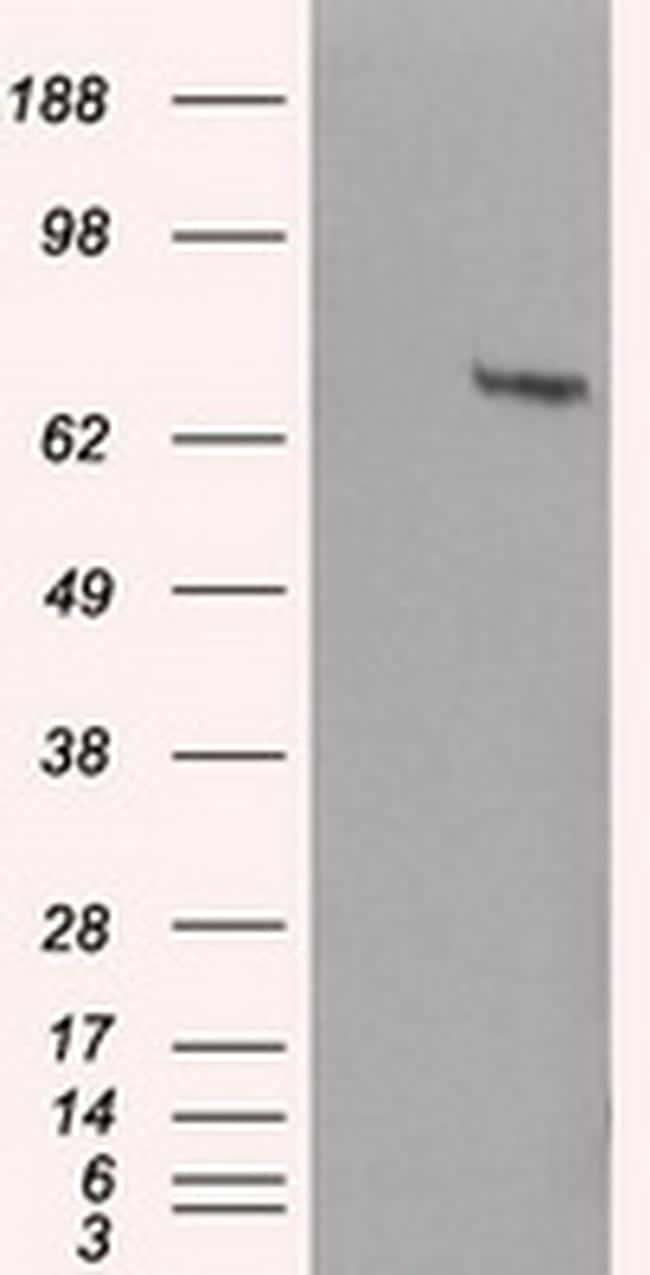 HDAC10 Antibody in Western Blot (WB)
