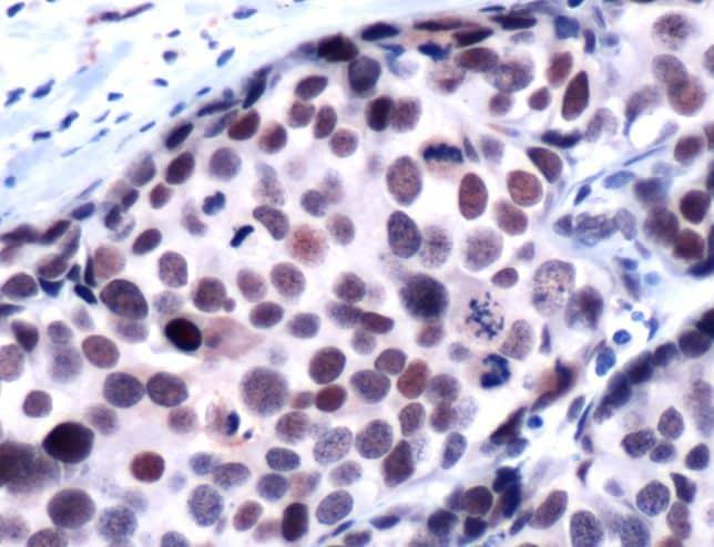 HDAC1 Antibody in Immunohistochemistry (IHC)