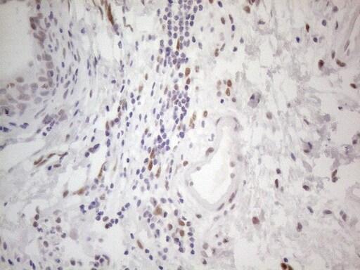 HDAC2 Antibody in Immunohistochemistry (Paraffin) (IHC (P))
