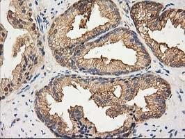 HDAC6 Antibody in Immunohistochemistry (Paraffin) (IHC (P))