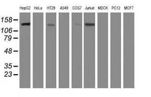 HDAC6 Antibody in Western Blot (WB)