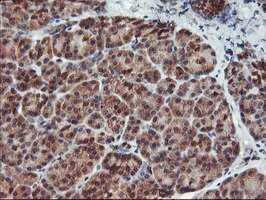 HDHD1 Antibody in Immunohistochemistry (Paraffin) (IHC (P))