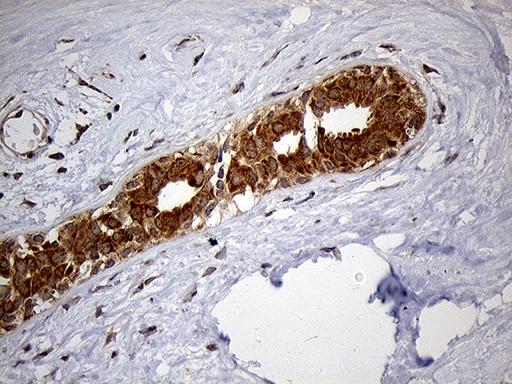 HDHD3 Antibody in Immunohistochemistry (Paraffin) (IHC (P))