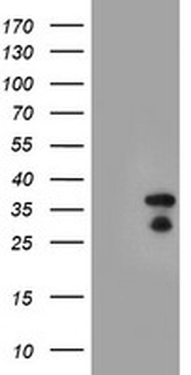 HES1 Antibody in Western Blot (WB)