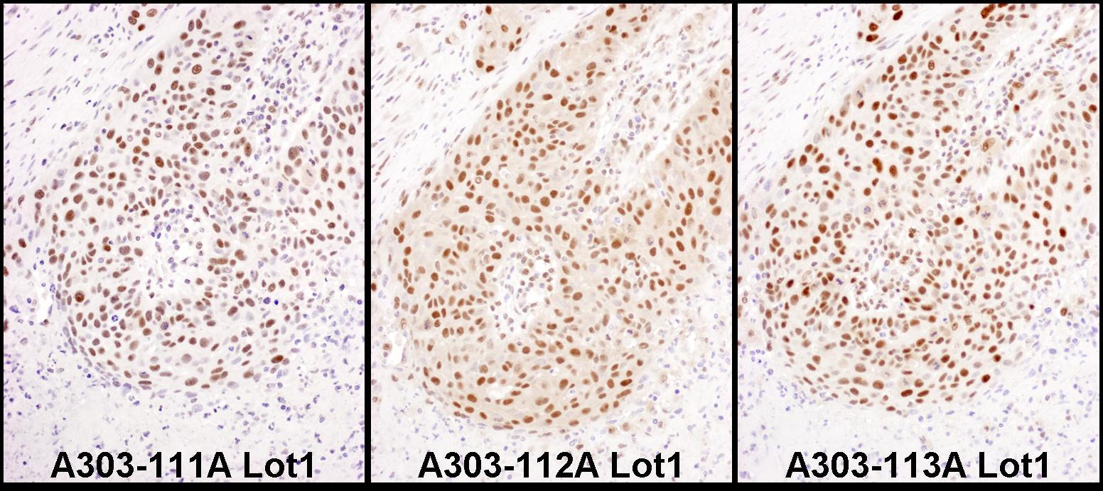 HEXIM1 Antibody in Immunohistochemistry (IHC)