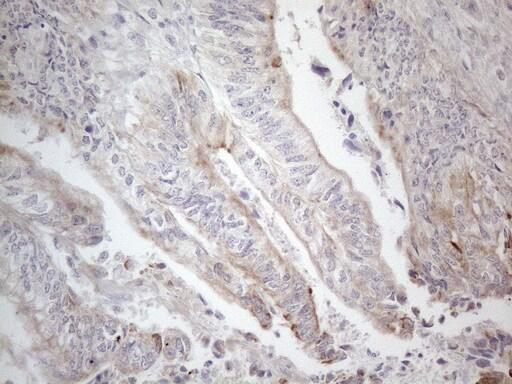 HGF Antibody in Immunohistochemistry (Paraffin) (IHC (P))