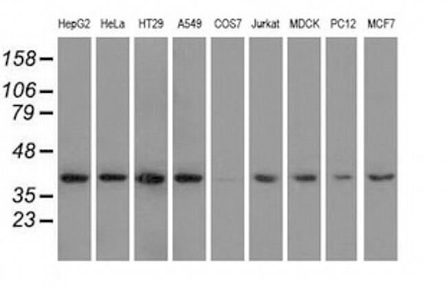 HIBCH Antibody in Western Blot (WB)