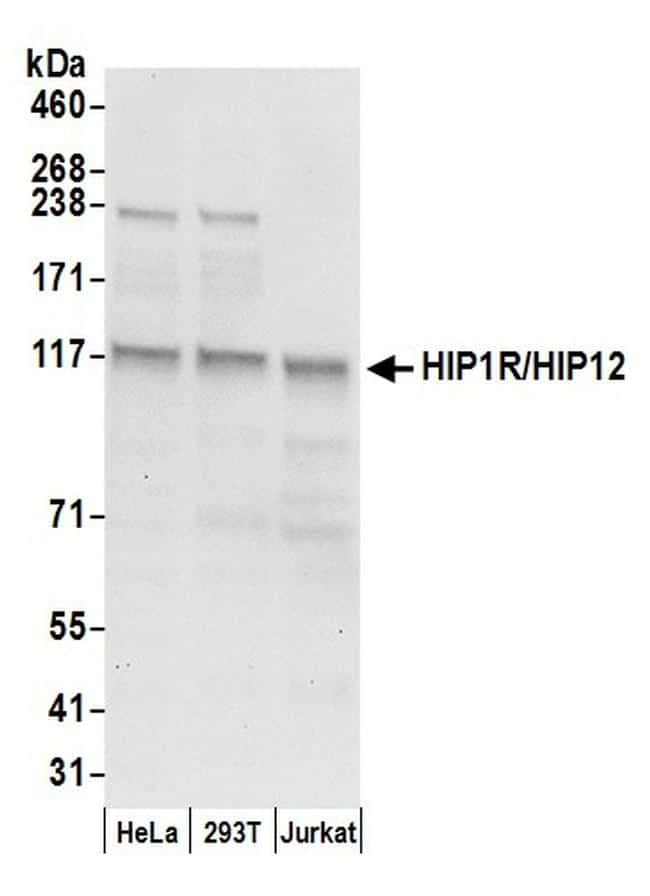 HIP1R/HIP12 Antibody in Western Blot (WB)