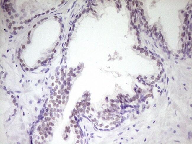 HIPK1 Antibody in Immunohistochemistry (Paraffin) (IHC (P))