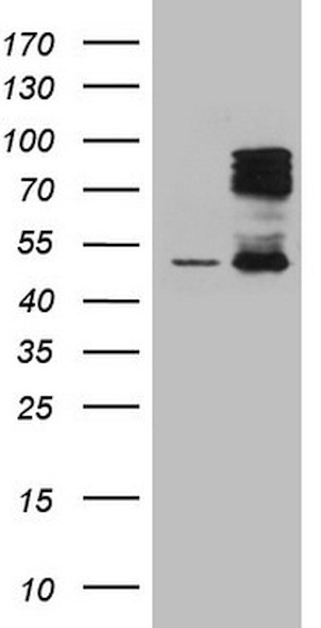 HIPK1 Antibody in Western Blot (WB)