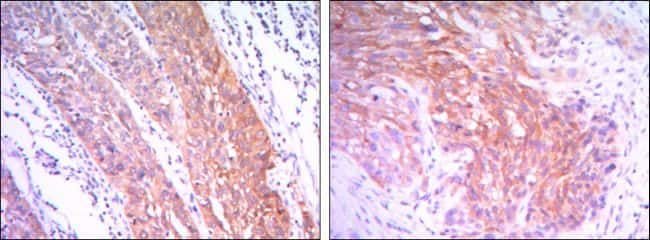 HK2 Antibody in Immunohistochemistry (IHC)