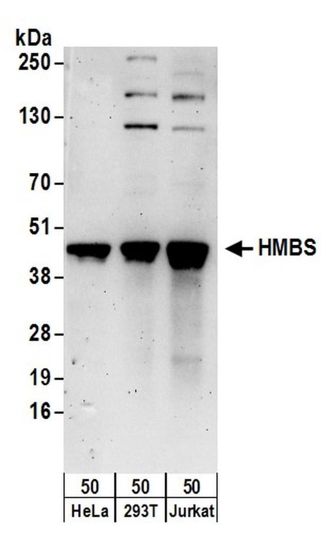 HMBS Antibody in Western Blot (WB)